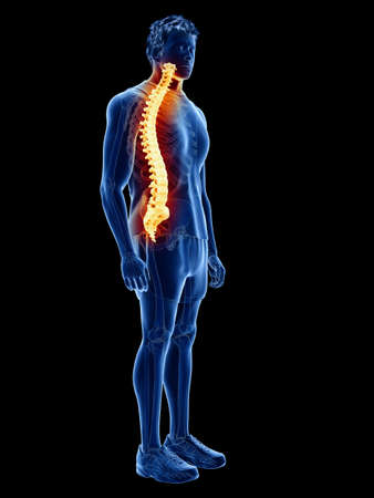 3d rendered medically accurate illustration of a man having back pain