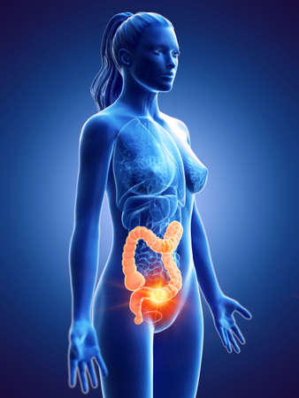 3d rendered medically accurate illustration of a womans colon cancer