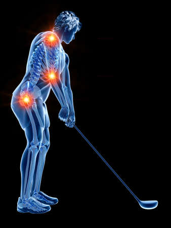 3d rendered medically accurate illustration of the skeleton of a golf player with painful joints Stock Photo