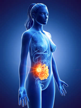 3d rendered medically accurate illustration of a womans small intestine cancer