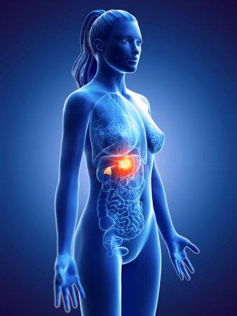 3d rendered medically accurate illustration of a womans adrenal glands cancer Reklamní fotografie - 117494528