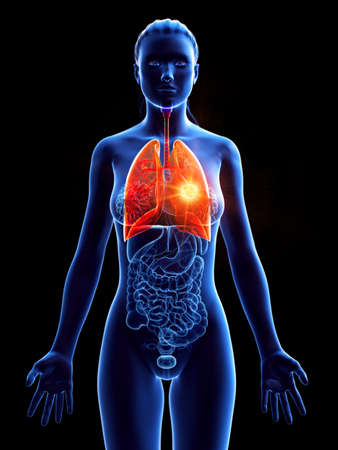 3d rendered medically accurate illustration of a womans lung tumor
