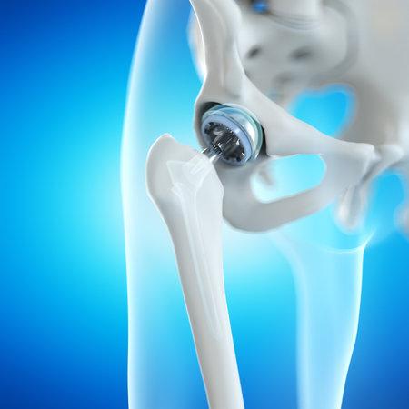 3d rendered illustration of a hip implant