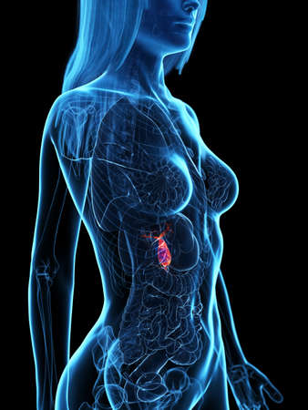 3d rendered medically accurate illustration of a diseased gallbladder