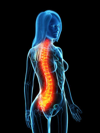 3d rendered medically accurate illustration of a painful spine