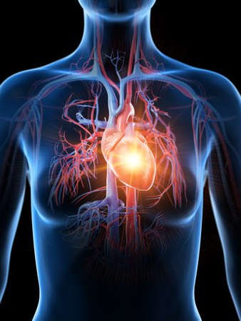 3d rendered medically accurate illustration of a heart attack Stock Photo