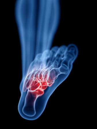 3d rendered medically accurate illustration of a painful foot Banque d'images - 119081953