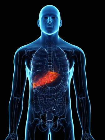3d rendered medically accurate illustration of a diseased liver