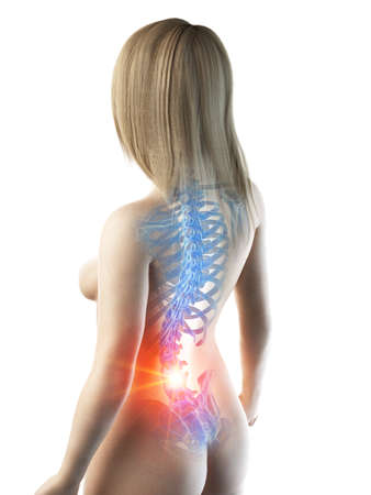 3d rendered medically accurate illustration of a painful back Foto de archivo - 119080839