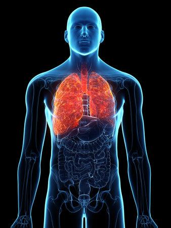 3d rindió la ilustración médicamente exacta de un pulmón enfermo