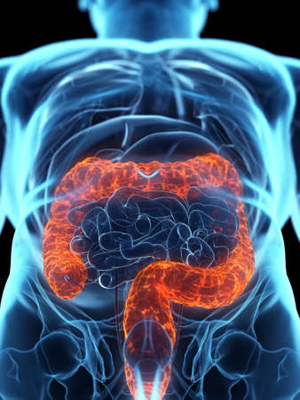 3d rendered medically accurate illustration of a diseased colon Banque d'images