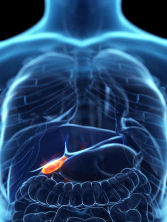 3d rendered medically accurate illustration of a diseased gallbladder Stock fotó