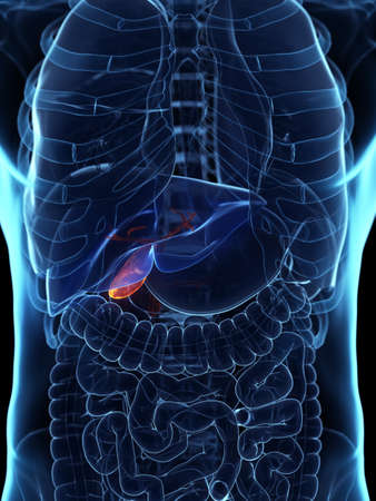 3d rendered medically accurate illustration of a diseased gallbladder Stock Photo