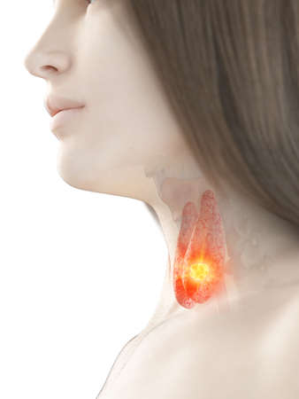 3d rendered medically accurate illustration of a woman having thyroid cancer