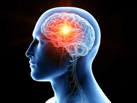 3d rendered medically accurate illustration of human brain cancer Stock Photo