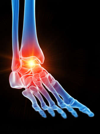 3d rendered medically accurate illustration of the ankle joint showing pain Banque d'images - 120725122