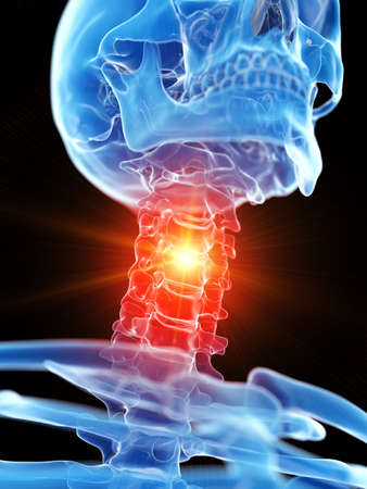 3d rendered medically accurate illustration of the cervical neck showing pain