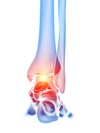 3d rendered medically accurate illustration of the ankle joint showing pain Banque d'images - 120725129