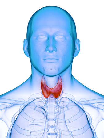 3d rendered medically accurate illustration of a diseased thyroid gland