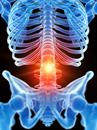 3d rendered medically accurate illustration of the lumbar spine showing pain