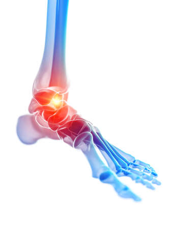 3d rendered medically accurate illustration of the ankle joint showing pain Banque d'images - 120725524