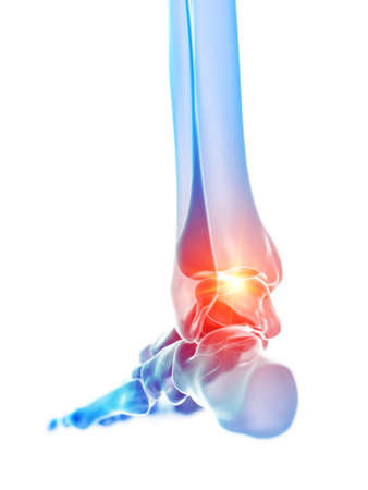 3d rendered medically accurate illustration of the ankle joint showing pain Banque d'images - 120725541