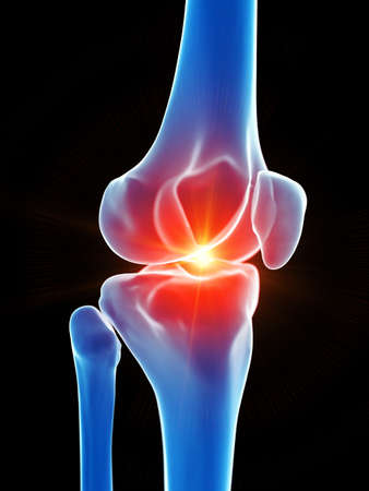 3d rendered medically accurate illustration of the knee showing pain Stock Photo