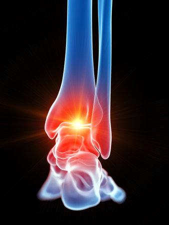 3d renderowana medycznie dokładna ilustracja stawu skokowego pokazująca ból