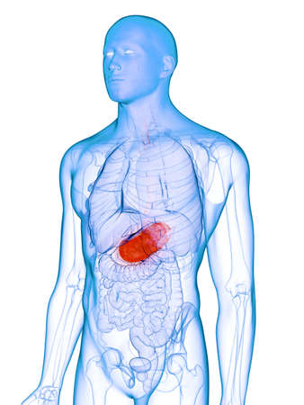 3d rendered medically accurate illustration of a diseased stomach