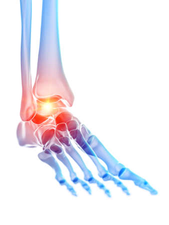 3d rendered medically accurate illustration of the ankle joint showing pain Stock Photo