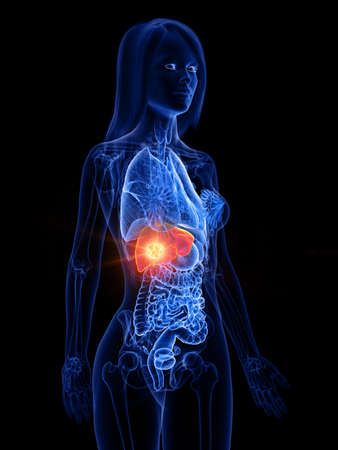 3d rendered medically accurate illustration of a womans liver tumor Stock Photo