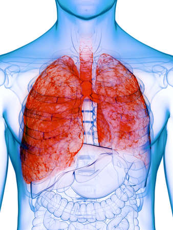 3d rendered medically accurate illustration of a diseased lung
