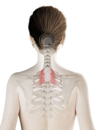 3d rendered medically accurate illustration of a womans Serratus Posterior Superior