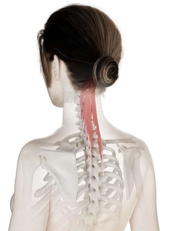 3d rendered medically accurate illustration of a womans semispinalis capitis Stock Illustration - 121139170