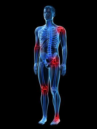 3D gerenderte medizinisch genaue Darstellung der schmerzenden Gelenke eines Mannes