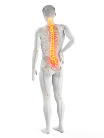 3d rendered medically accurate illustration of a mans painful back Stock fotó
