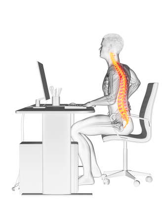 3d rendered medically accurate illustration of an office workers painful back