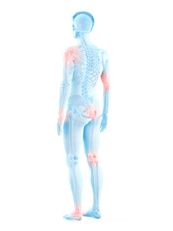 3d rendered medically accurate illustration of a mans painful joints Archivio Fotografico - 121139684