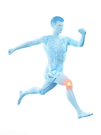 3d rendered medically accurate illustration of a runners painful kee