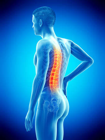 3d rindió la ilustración médicamente exacta de la espalda dolorosa de un hombre