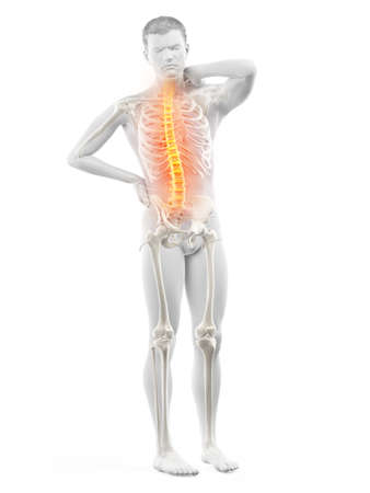 3d rendered medically accurate illustration of a mans painful back 写真素材