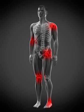 3d rendered medically accurate illustration of a mans painful joints Archivio Fotografico - 121139891