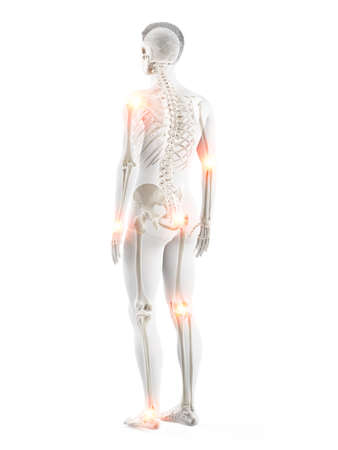 3d rendered medically accurate illustration of a mans painful joints Archivio Fotografico - 121139898