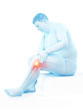3d rendered medically accurate illustration of an obese mans painful knee Stock Illustration - 121282408
