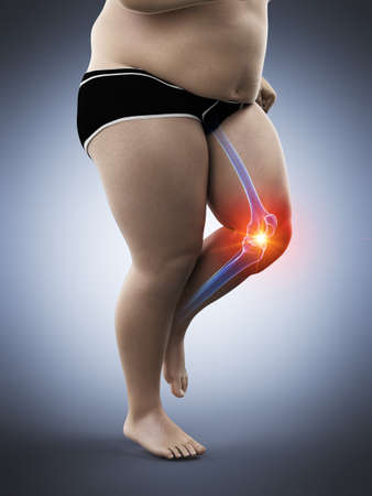 3d rendered medically accurate illustration of an obese runners painful knee