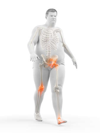 3d rendered medically accurate illustration of an obese runners painful joints Stok Fotoğraf
