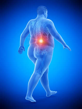 3d rendered medically accurate illustration of an obese runners painful back Stock Photo