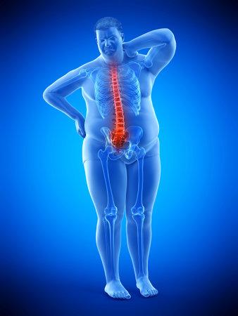 Médicalement rendu 3d illustration précise d'un dos douloureux de l'homme obèse