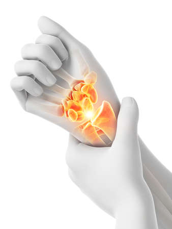 3d rendered medically accurate illustration of a mans painful wrist Reklamní fotografie