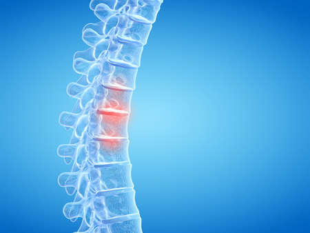3d rendered medically accurate illustration of painful intervertebral discs Stock Photo